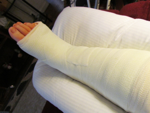 On Call In Action Woman Fractures Foot At Sochi Olympics